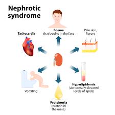 مداخله برای سندرم نفروتیک ایدیوپاتیک مقاوم به استروئید در کودکان
