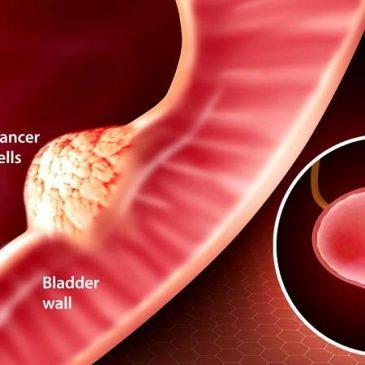 آیا بیماران سرطانی مثانه تحت درمان قرار می گیرند؟